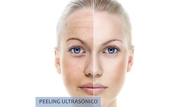 4 Sessões de Peeling Ultrasónico para Combater as Rugas no Contorno de Olhos e Lábios!