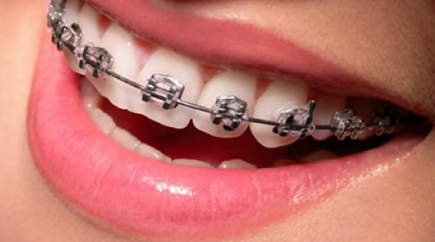Aparelho Dentário Completo! Com 3 Consultas de Manutenção Incluídas na Baixa do Porto!