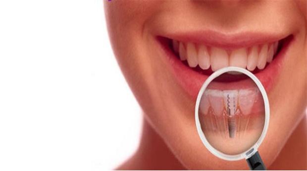 Dentes Renovados com Implante Dentário!