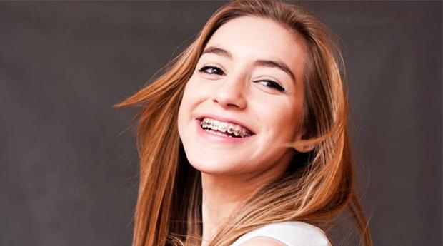 Sorri com Confiança! Aparelho Dentário Autoligável, Metálico ou Estético com Consulta de Avaliação e Destartarização em Lisboa ou Amadora!