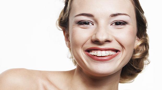 Aparelho Dentário com Oferta de Branqueamento em 3 Clínicas à Escolha! Sorri Livremente!