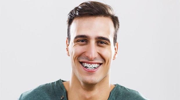 Aparelho Dentário com Estudos Ortodônticos, Moldes, Destartarização e Muito Mais em Odivelas!