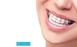 Branqueamento Dentario A Laser Em Odivelas Da Um Novo Brilho Ao Teu