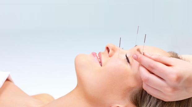 1, 2 ou 3 Sessões de Acupunctura Médica no Porto!
