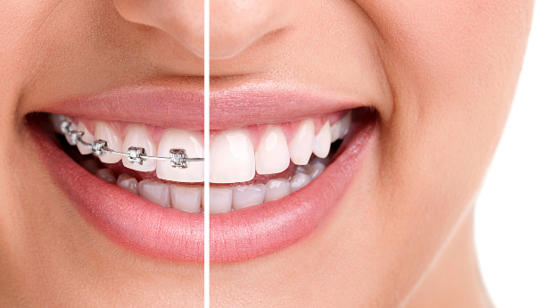 Aparelho Dentário Completo com Branqueamento Dentário a Laser em Queluz!