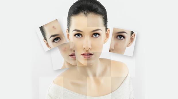 Microdermoabrasão com Aplicação de Regenerador Facial em Loures! Adeus Acne e Rugas!